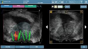 biopsja fuzyjna prostaty