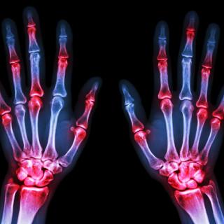 reumatolog józefów