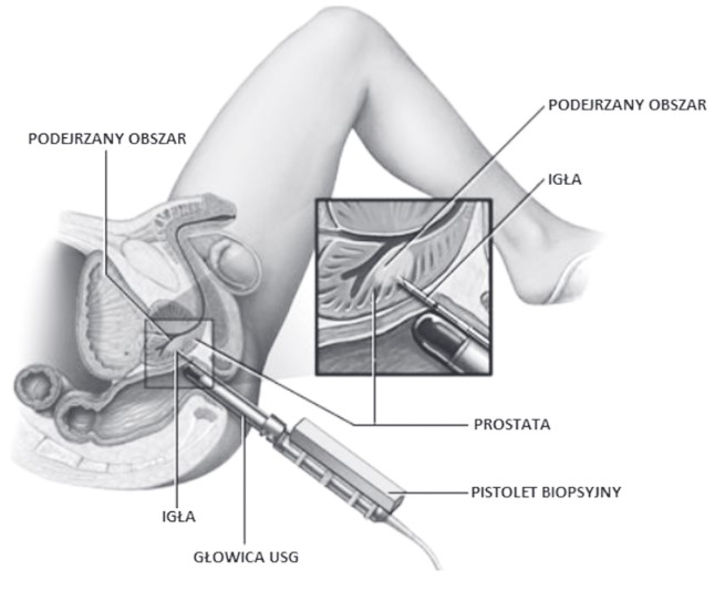 biopsja-prostaty-1.jpg